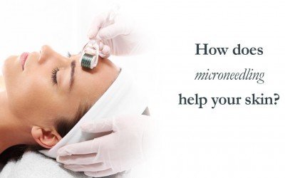 How does microneedling help your skin?